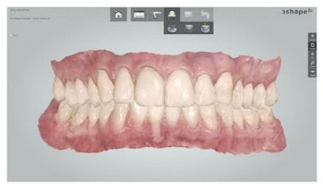 """Dental Impression Scanners """"An overview of What's What"""